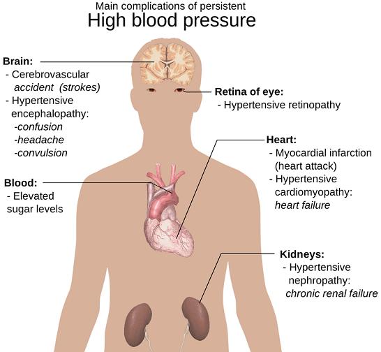konsekwencje nadiśnienia tętniczego